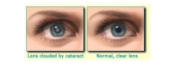 Cataract example