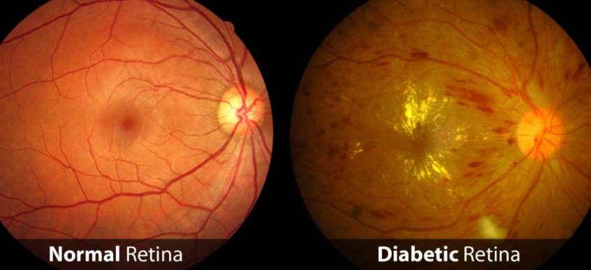 normal vs diabetic retinopathy